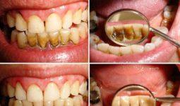 Diş Tartarını Yok Eden Doğal Formüller Nelerdir?