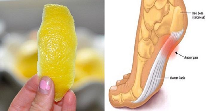 Topuk dikenine limon kabuğu!