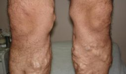 Bacaklarınızda Şişme Meydana Geliyorsa İşte Nedenleri