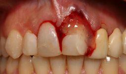 Diş Apsesi Nedir ve Çözümü Var mıdır?