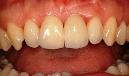 Diş Sararması Neden Olur,Nasıl Önlenir