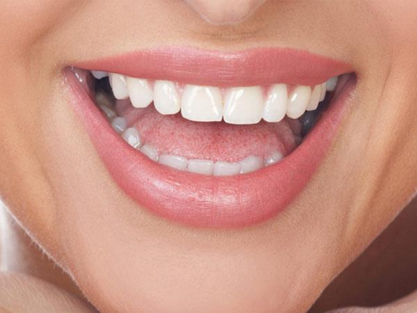 Sağlıklı Dişler İçin Neler Yapmalı?