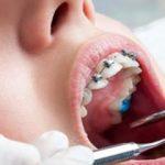 Diş Teli Mi? Yoksa Kaplama Mı ?