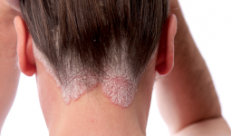 Deri Hastalıkları Çeşitleri Belirti ve Tedavileri
