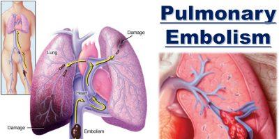 Akciğer Embolisi, Akciğer İnfarktı Belirtileri ve Tedavisi