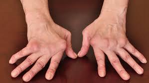 carpik-parmaklar