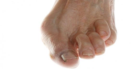 Parmaklarda Şekil Bozukluğu ve Ağrı Tedavisi