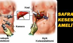 Safra Kesesi Ameliyatı Nedir ve Nasıl Yapılmaktadır?