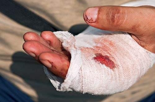 el-yaralanmalari-tedavisi