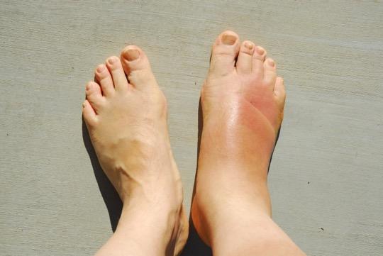 Ayak Parmağımı Çarptım Ağrıyor Diyorsanız