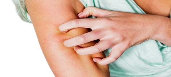 Alerji Tedavisinde Ne Tür İlaçlar Kullanılır