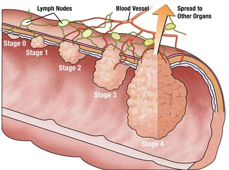 Kalın bağırsak kanseri nedir belirtileri nelerdir