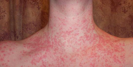 Alerjinizin İyileşmemesinin 4 Nedeni Ve 4 Çözüm