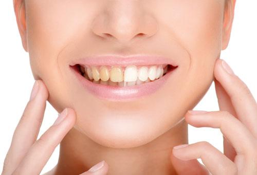 Diş Beyazlatmada Bitkisel Çözüm