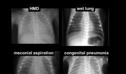 Akciğer Ödemi (AKUT)