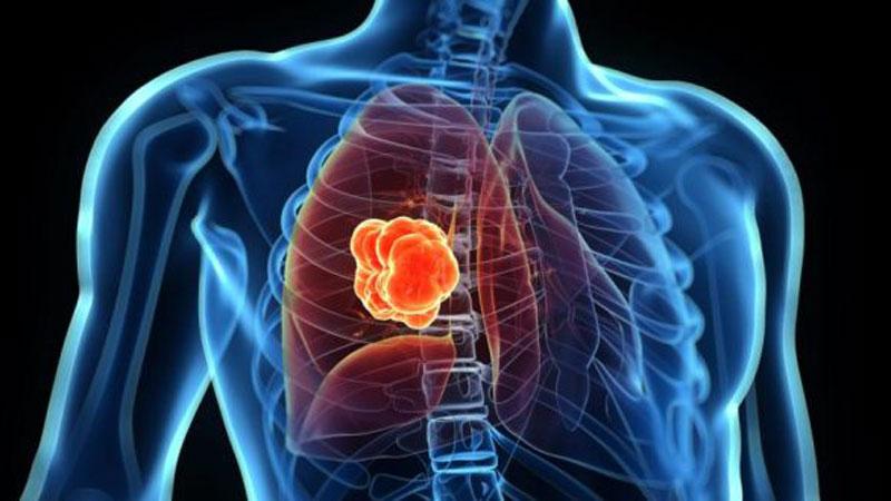 Akciğer Apsesi