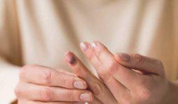 Darbe Sonucu Tırnak Morarması Nasıl Geçer?